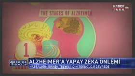 Alzheimer'a Yapay Zeka Önlemi