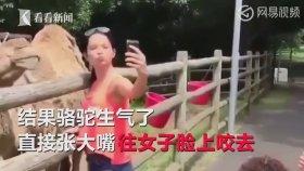 Selfie Çekmek İsteyen Kadının Başını Isıran Deve
