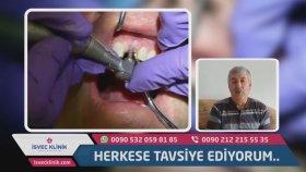 Diş implant nasıl yapılır ?